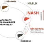 Évolution du foie vers la nash